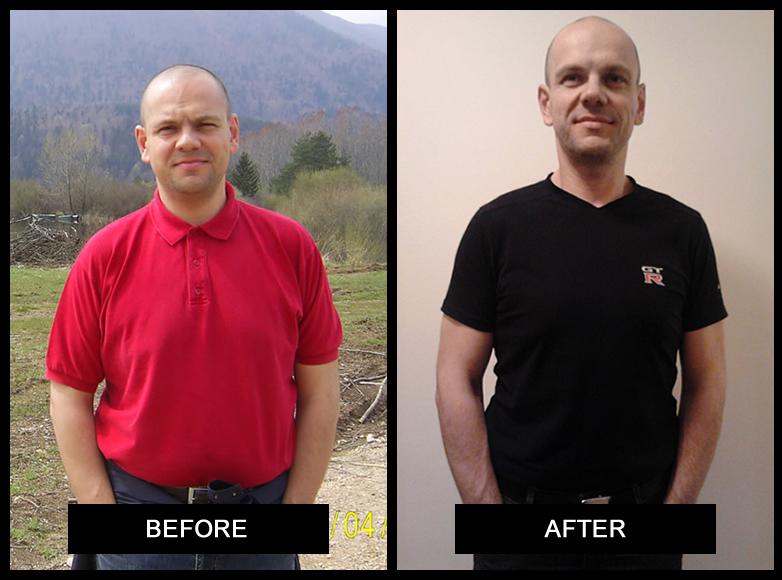 """""""I Did It!"""" Matej's Weight-Loss Success Story"""